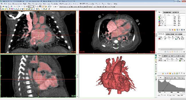 medicina stampa 3D